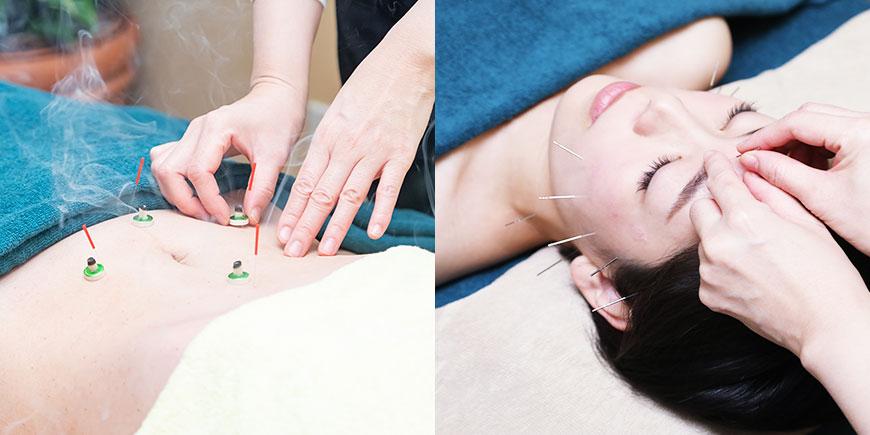 足や腹部の鍼灸治療の様子